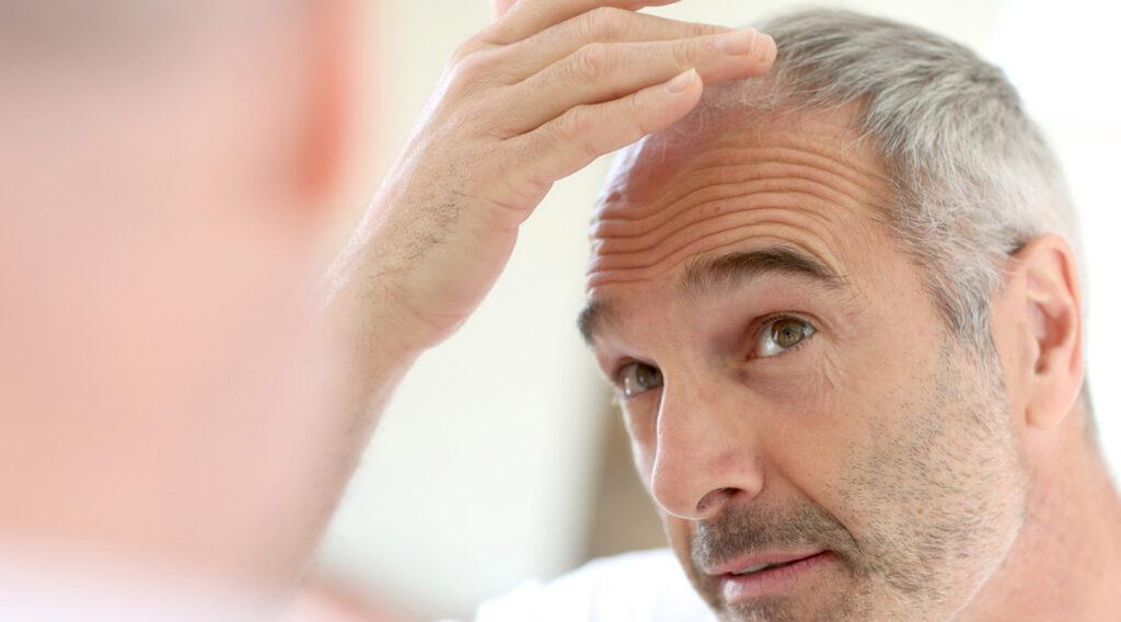 Mit tri.balance Haarausfall verhindern und Haarausfall aktiv vorbeugen.